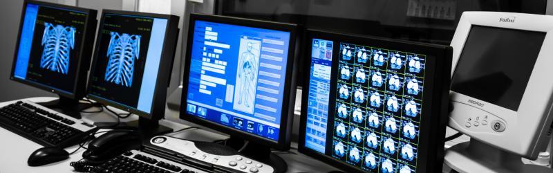 Tomografia Assiale Computerizzata  La tomografia assiale computerizzata (